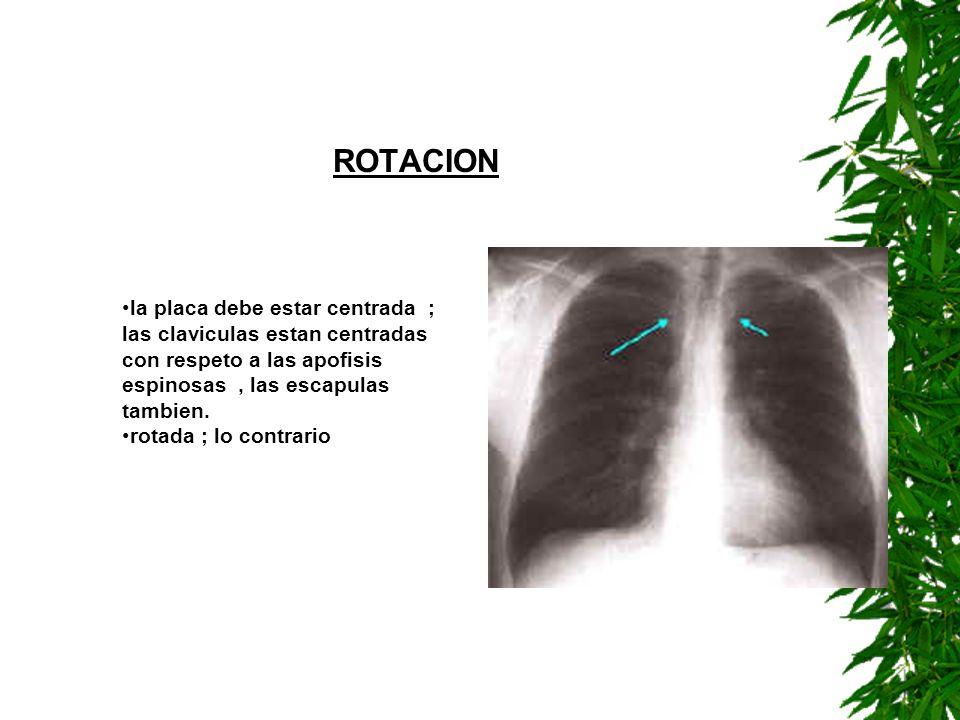ROTACION la placa debe estar centrada ; las claviculas estan centradas con respeto a las apofisis espinosas, las escapulas tambien. rotada ; lo contra