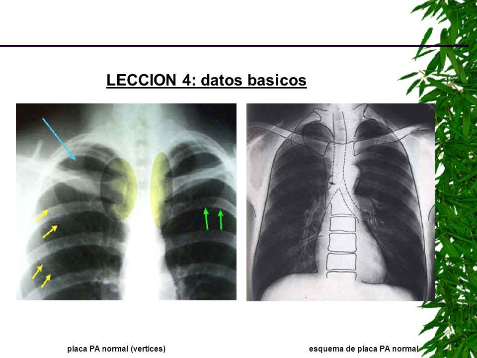 LECCION 4: datos basicos placa PA normal (vertices)esquema de placa PA normal