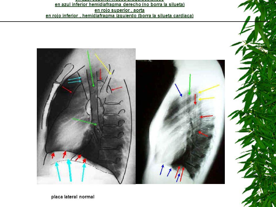 LECCION 5: lateral de torax en amarillo escapula en verde arbol bronquial en azul superior,vasos braquiocefalicos en azul inferior hemidiafragma derec