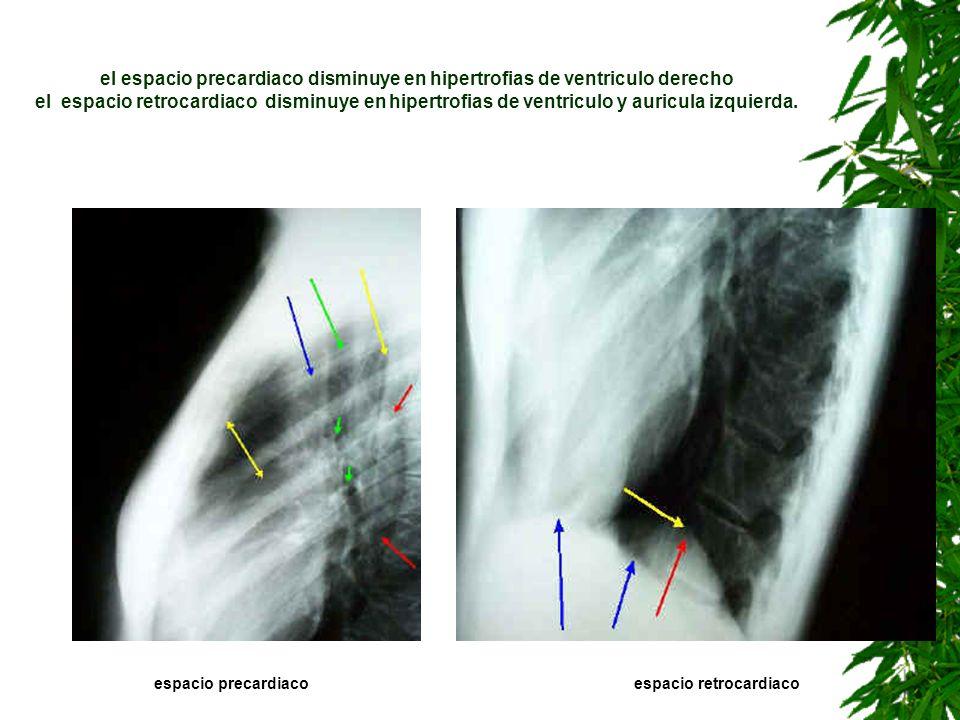 el espacio precardiaco disminuye en hipertrofias de ventriculo derecho el espacio retrocardiaco disminuye en hipertrofias de ventriculo y auricula izq