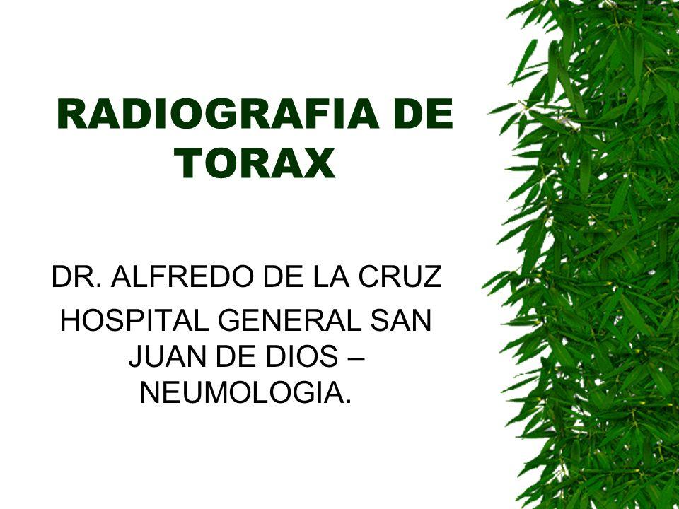 RADIOGRAFIA DE TORAX DR. ALFREDO DE LA CRUZ HOSPITAL GENERAL SAN JUAN DE DIOS – NEUMOLOGIA.