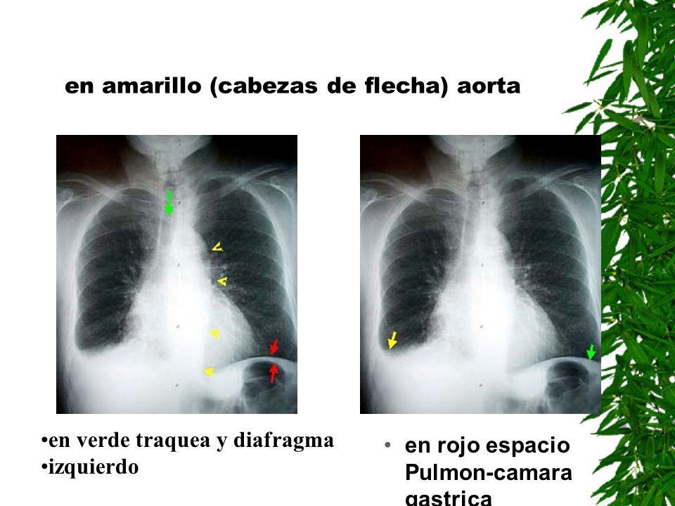 en amarillo (cabezas de flecha) aorta en rojo espacio Pulmon-camara gastrica en verde traquea y diafragma izquierdo