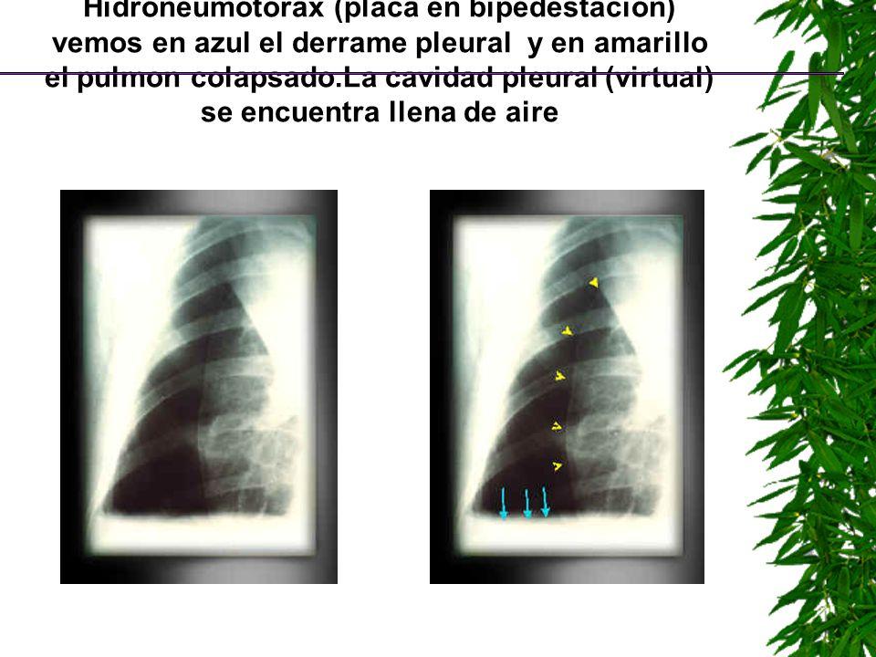 Hidroneumotorax (placa en bipedestacion) vemos en azul el derrame pleural y en amarillo el pulmon colapsado.La cavidad pleural (virtual) se encuentra