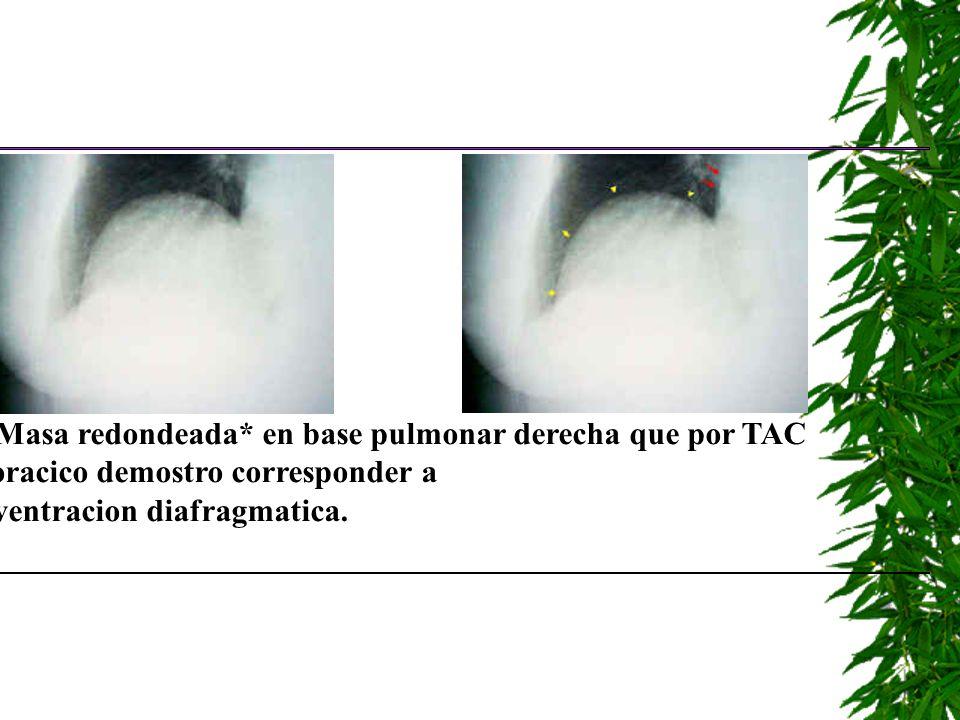 *Masa redondeada* en base pulmonar derecha que por TAC toracico demostro corresponder a eventracion diafragmatica.