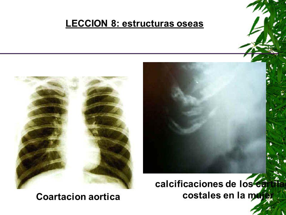 LECCION 8: estructuras oseas Coartacion aortica calcificaciones de los cartilagos costales en la mujer