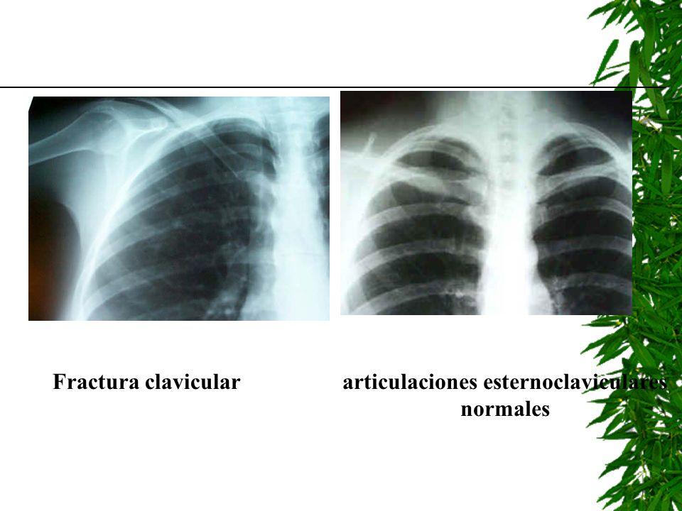 Fractura claviculararticulaciones esternoclaviculares normales