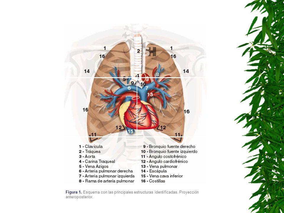 Figura 1. Esquema con las principales estructuras identificadas. Proyección anteroposterior.