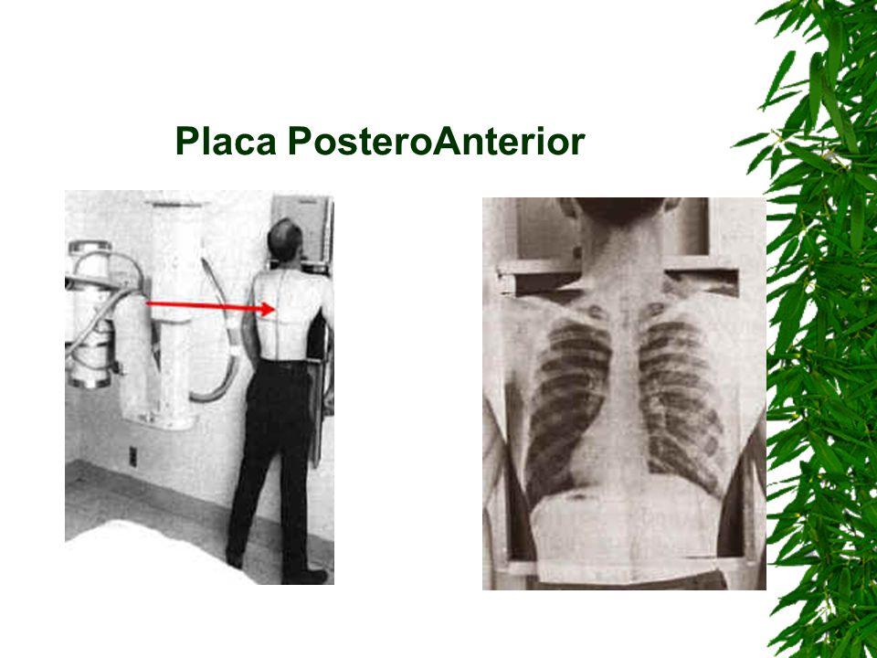 Vemos a la izquierda una placa PA de Torax y nos fijaremos que el angulo costofrenico derecho esta obliterado (existe cardiomegalia).