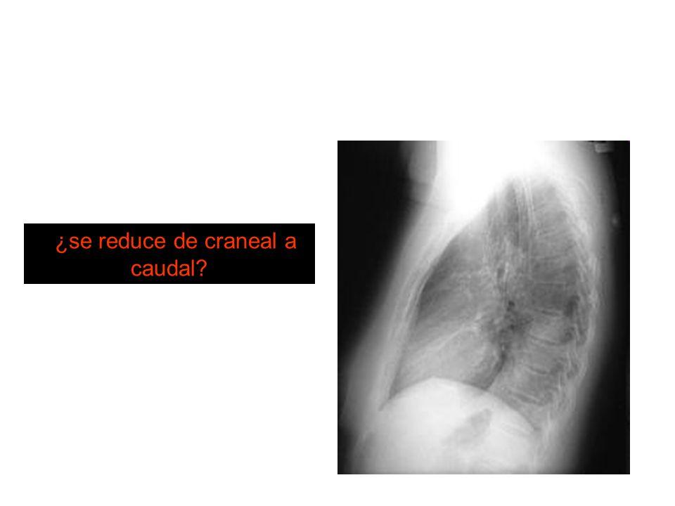 ¿se reduce de craneal a caudal?