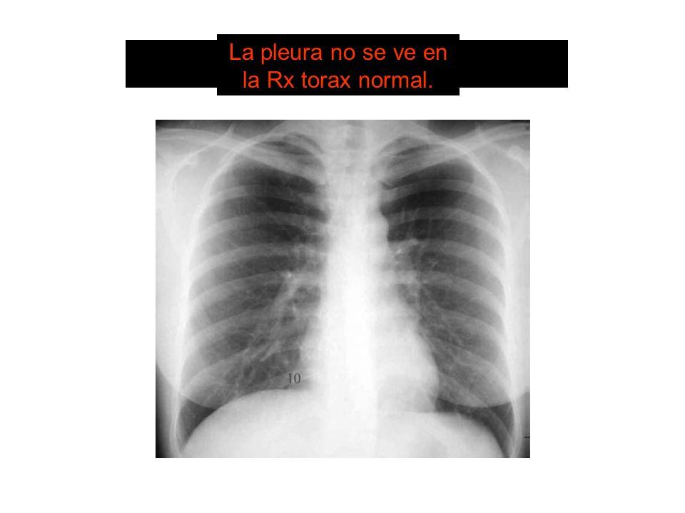 SISTEMA DE LECTURA 2. Pleura La pleura no se ve en la Rx torax normal.
