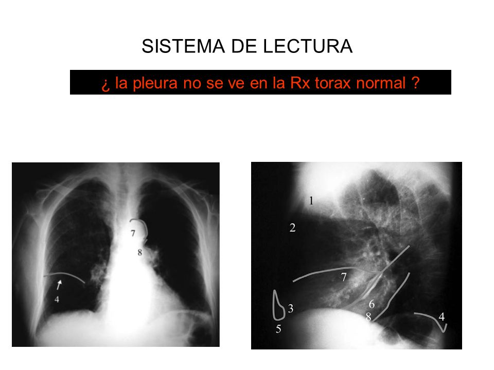 SISTEMA DE LECTURA 2. Pleura¿ la pleura no se ve en la Rx torax normal ?