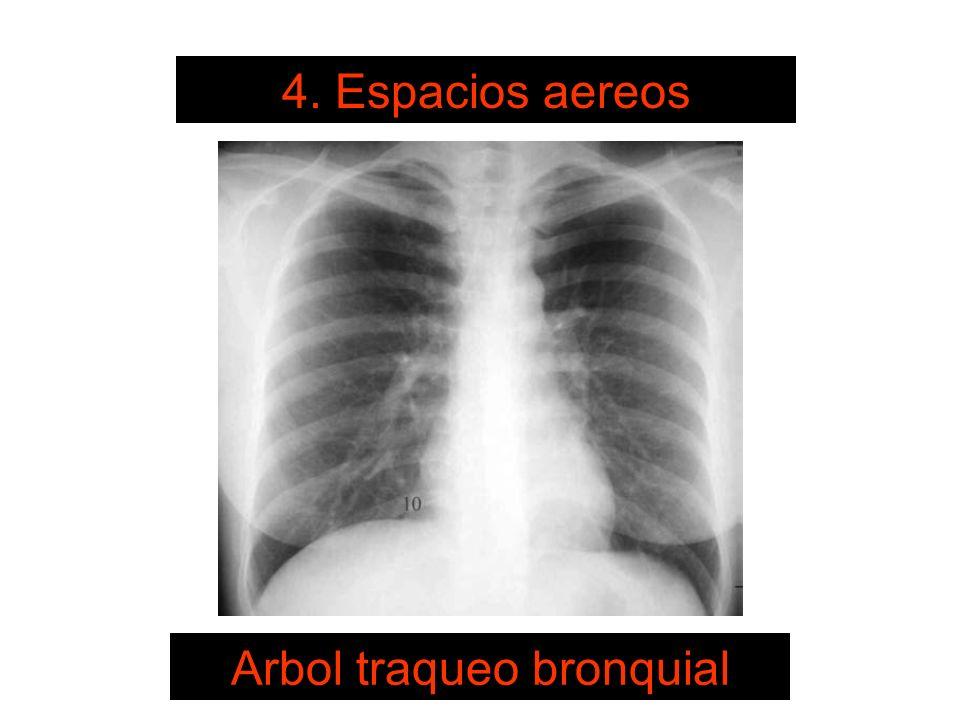 SISTEMA DE LECTURA 4. Espacios aereos Arbol traqueo bronquial