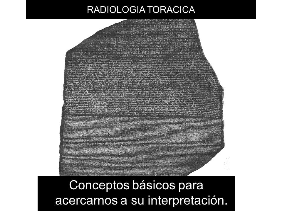 RADIOLOGIA TORACICA Conceptos básicos para acercarnos a su interpretación.