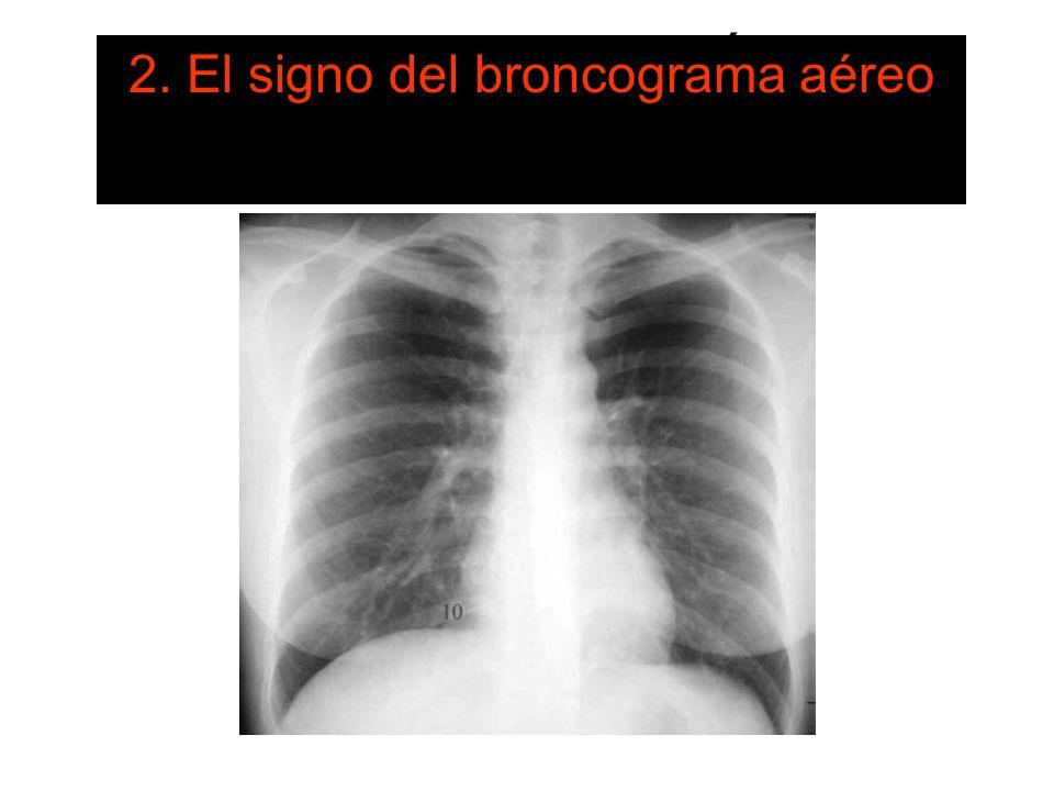LOS SIGNOS RADIOLÓGICOS FUNDAMENTALES 2. El signo del broncograma aéreo