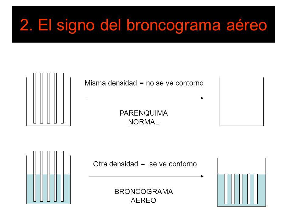 2. El signo del broncograma aéreo Misma densidad = no se ve contorno Otra densidad = se ve contorno PARENQUIMA NORMAL BRONCOGRAMA AEREO