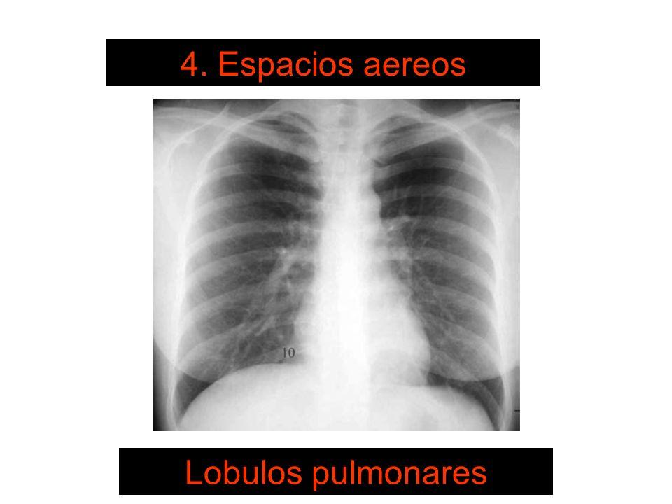 SISTEMA DE LECTURA 4. Espacios aereos Lobulos pulmonares