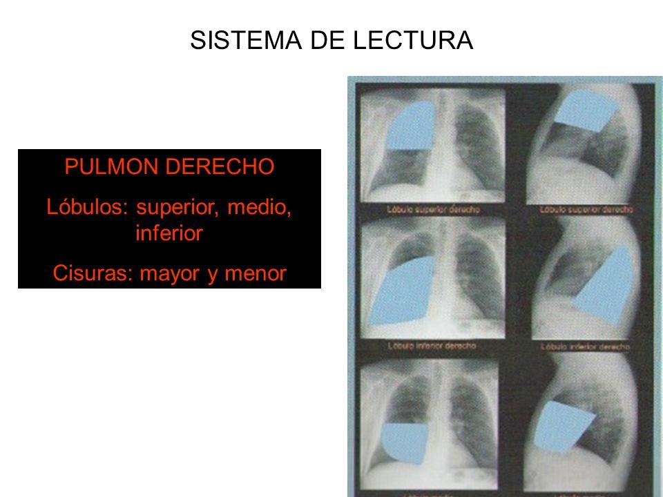 SISTEMA DE LECTURA PULMON DERECHO Lóbulos: superior, medio, inferior Cisuras: mayor y menor