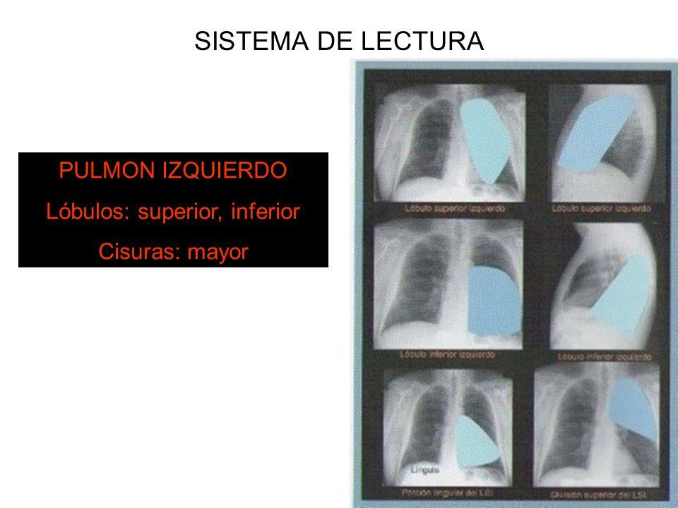 SISTEMA DE LECTURA PULMON IZQUIERDO Lóbulos: superior, inferior Cisuras: mayor