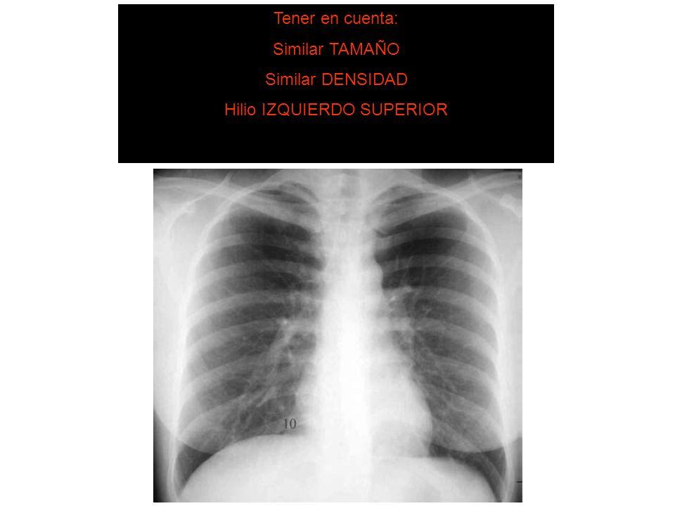 SISTEMA DE LECTURA 5. Hilios pulmonares Tener en cuenta: Similar TAMAÑO Similar DENSIDAD Hilio IZQUIERDO SUPERIOR