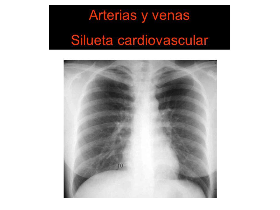 SISTEMA DE LECTURA 6. Estructuras vasculares Arterias y venas Silueta cardiovascular