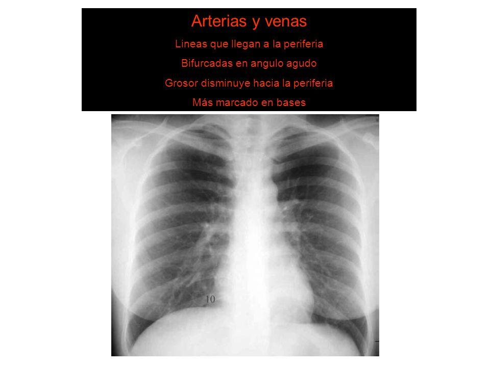 SISTEMA DE LECTURA 6. Estructuras vasculares Arterias y venas Lineas que llegan a la periferia Bifurcadas en angulo agudo Grosor disminuye hacia la pe