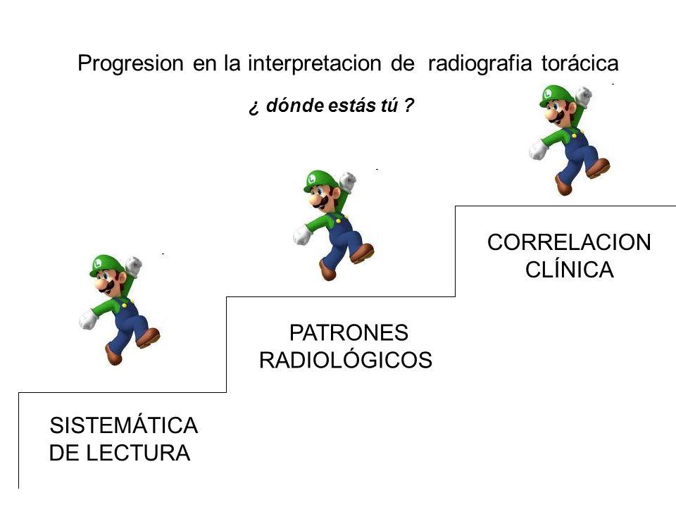 Progresion en la interpretacion de radiografia torácica SISTEMÁTICA DE LECTURA PATRONES RADIOLÓGICOS CORRELACION CLÍNICA ¿ dónde estás tú ?