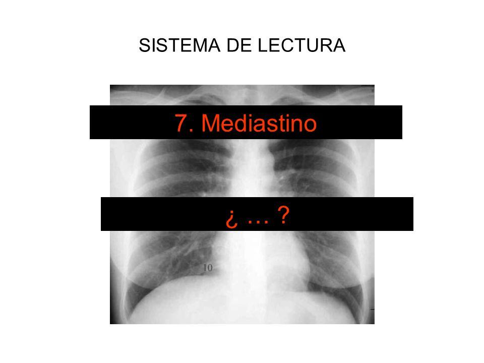 SISTEMA DE LECTURA 7. Mediastino ¿ … ?