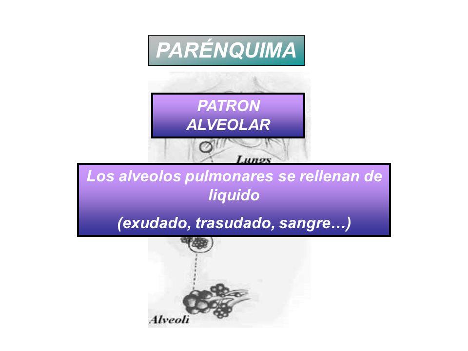 PARÉNQUIMA PATRON ALVEOLAR Los alveolos pulmonares se rellenan de liquido (exudado, trasudado, sangre…)