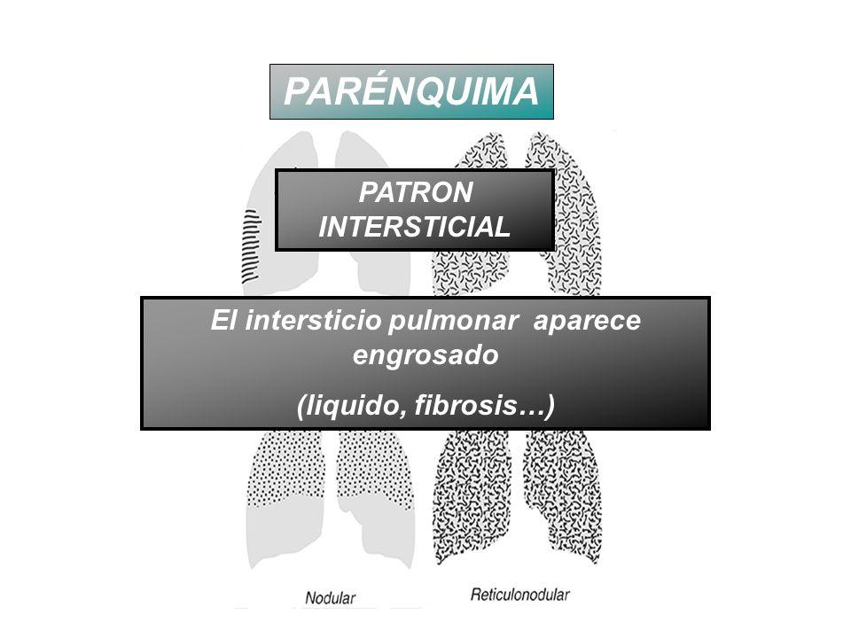 PARÉNQUIMA PATRON INTERSTICIAL El intersticio pulmonar aparece engrosado (liquido, fibrosis…)