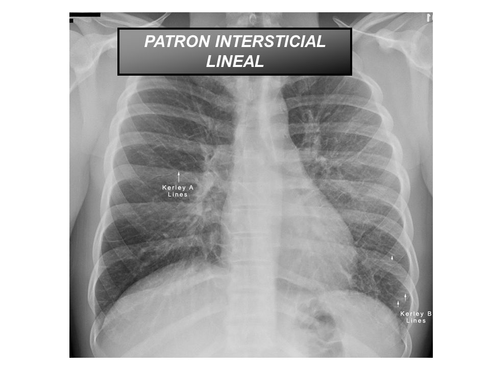 PATRON INTERSTICIAL LINEAL