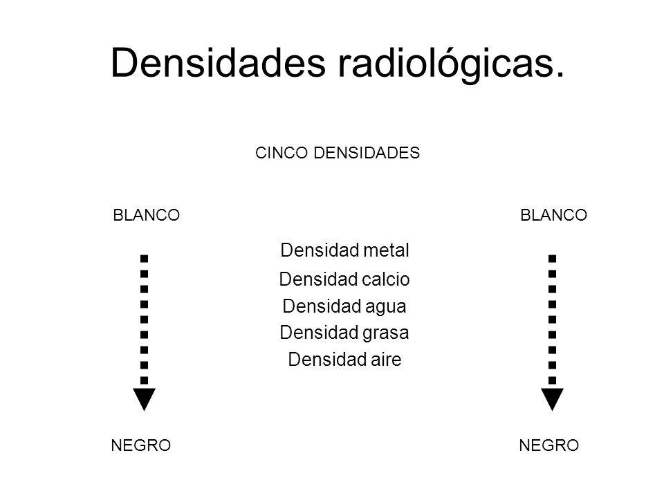 Densidades radiológicas. Densidad metal Densidad calcio Densidad agua Densidad grasa Densidad aire BLANCO NEGRO BLANCO NEGRO CINCO DENSIDADES