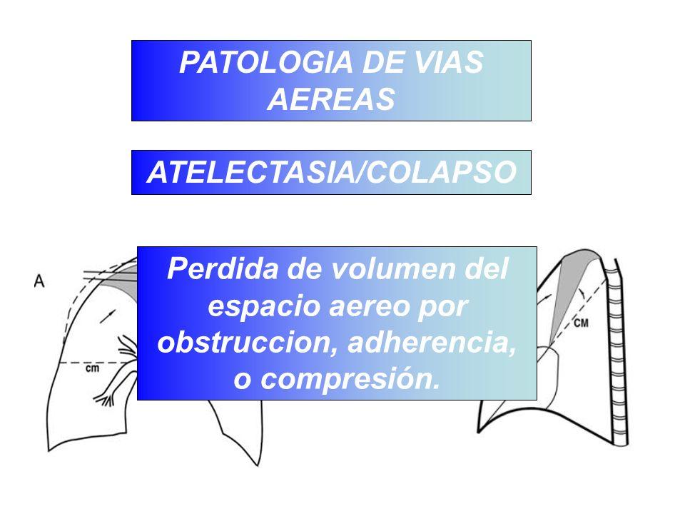 PATOLOGIA DE VIAS AEREAS ATELECTASIA/COLAPSO Perdida de volumen del espacio aereo por obstruccion, adherencia, o compresión.