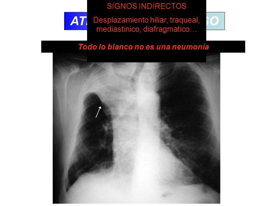 ATELECTASIA/COLAPSO SIGNOS DIRECTOS Desplazamiento cisural Agrupamiento broncovascular Opacificacion SIGNOS INDIRECTOS Desplazamiento hiliar, traqueal
