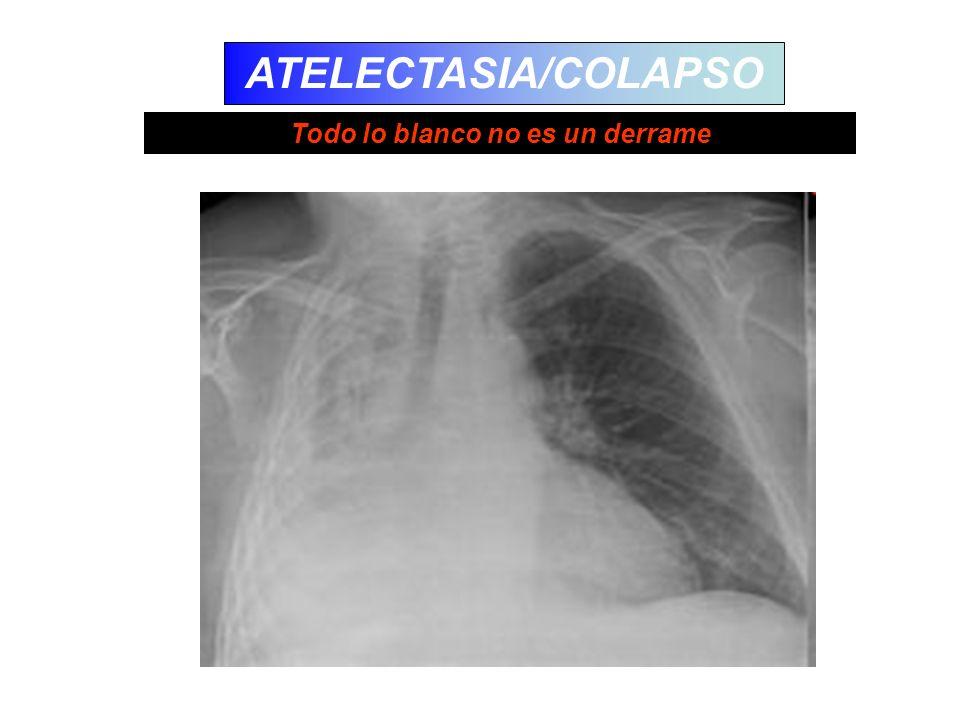 ATELECTASIA/COLAPSO Todo lo blanco no es un derrame