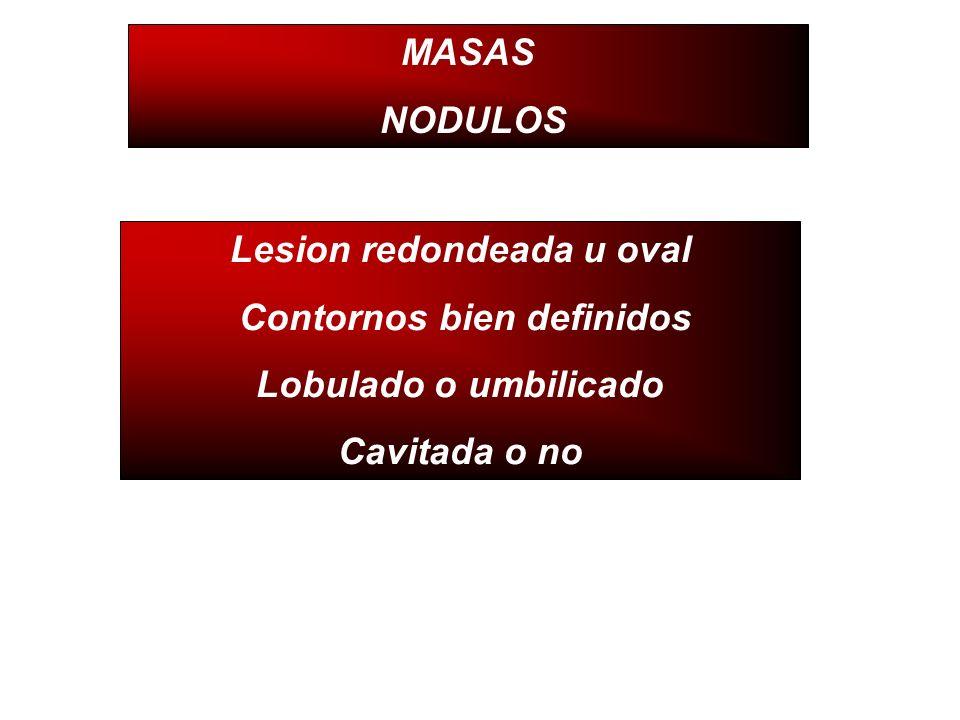MASAS NODULOS Lesion redondeada u oval Contornos bien definidos Lobulado o umbilicado Cavitada o no