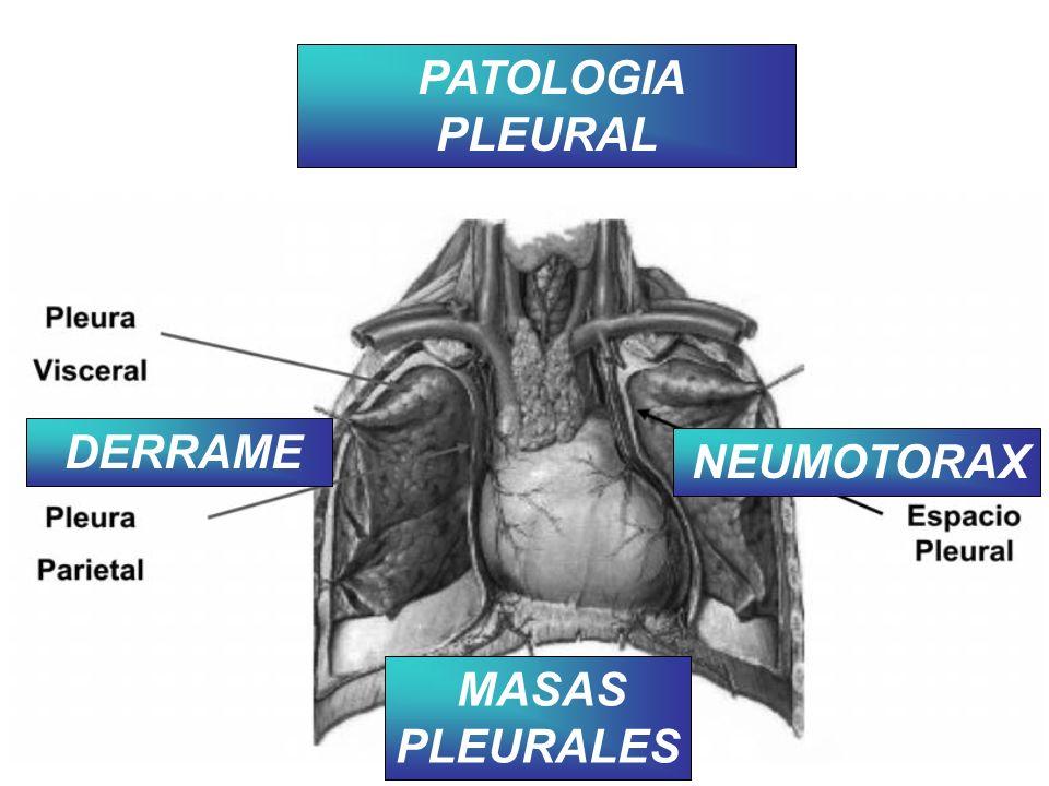 PATOLOGIA PLEURAL DERRAME NEUMOTORAX MASAS PLEURALES