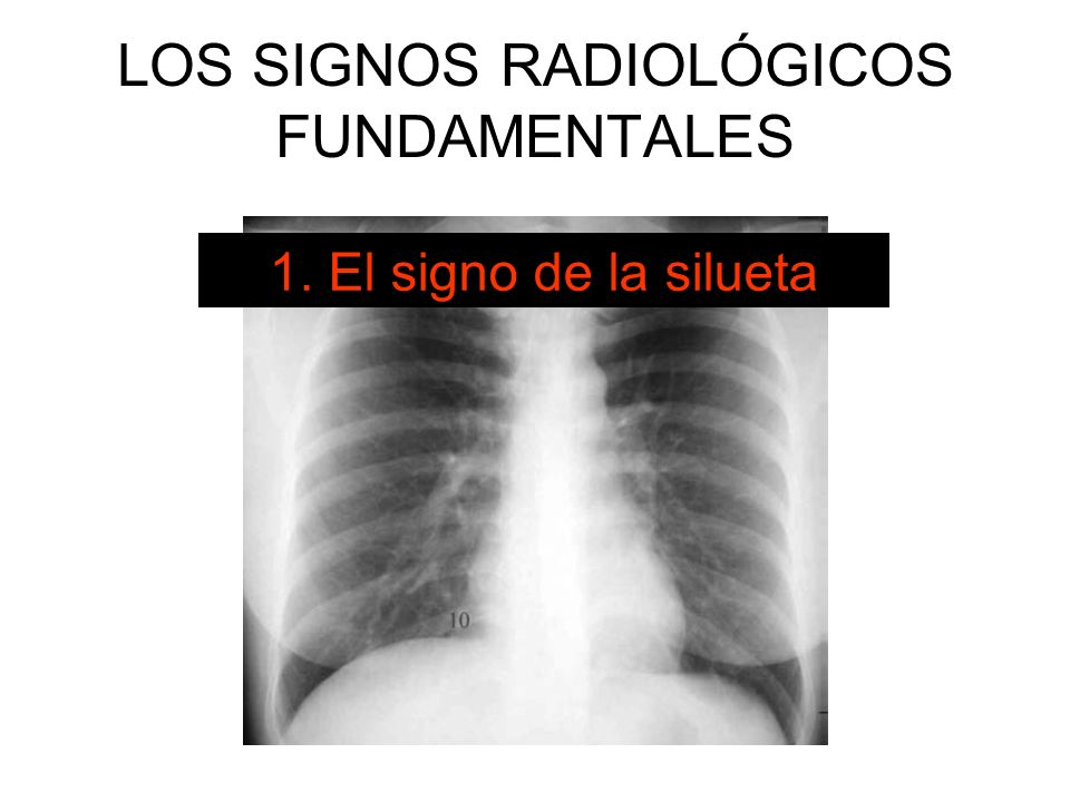 LOS SIGNOS RADIOLÓGICOS FUNDAMENTALES 1. El signo de la silueta