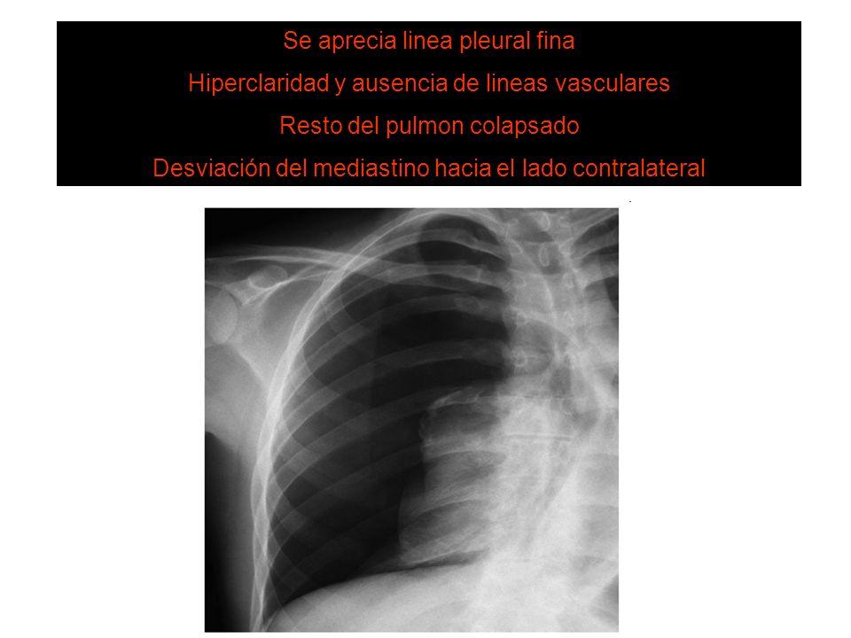 NEUMOTORAX Se aprecia linea pleural fina Hiperclaridad y ausencia de lineas vasculares Resto del pulmon colapsado Desviación del mediastino hacia el l
