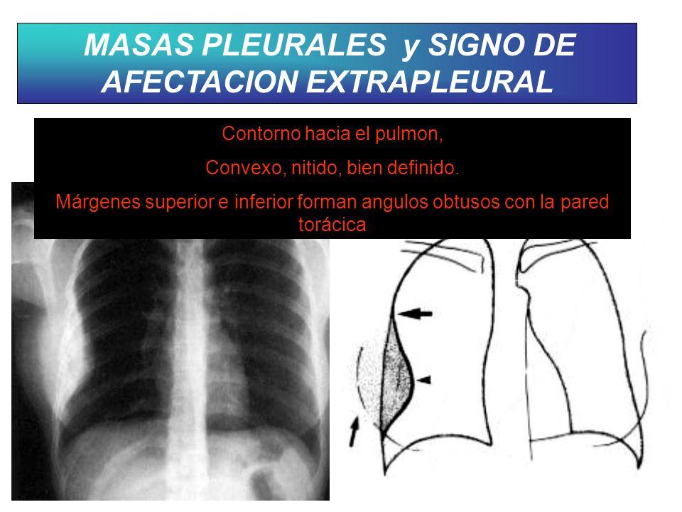 MASAS PLEURALES y SIGNO DE AFECTACION EXTRAPLEURAL Contorno hacia el pulmon, Convexo, nitido, bien definido. Márgenes superior e inferior forman angul