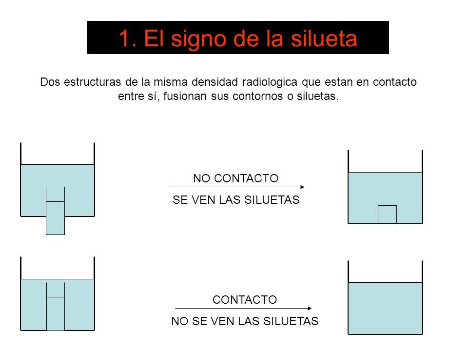 NO CONTACTO SE VEN LAS SILUETAS CONTACTO NO SE VEN LAS SILUETAS Dos estructuras de la misma densidad radiologica que estan en contacto entre sí, fusio