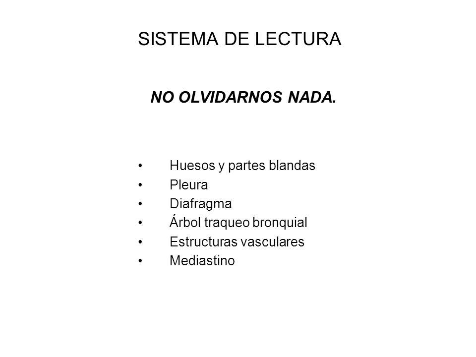 SISTEMA DE LECTURA ¿ ESTÁ BIEN HECHA .