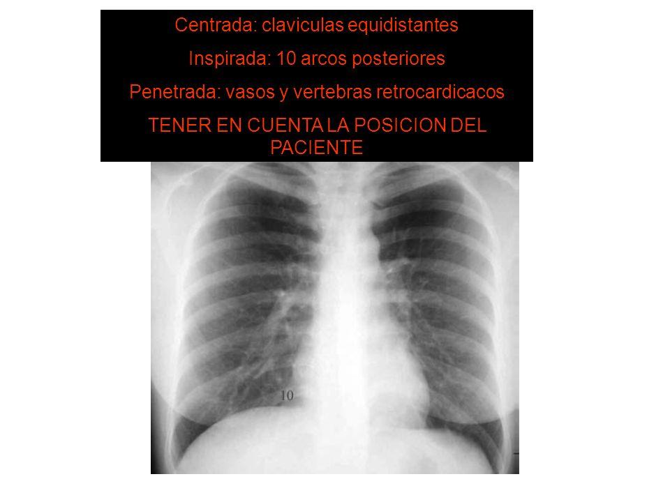 SISTEMA DE LECTURA ¿ ESTÁ BIEN HECHA ? Centrada: claviculas equidistantes Inspirada: 10 arcos posteriores Penetrada: vasos y vertebras retrocardicacos
