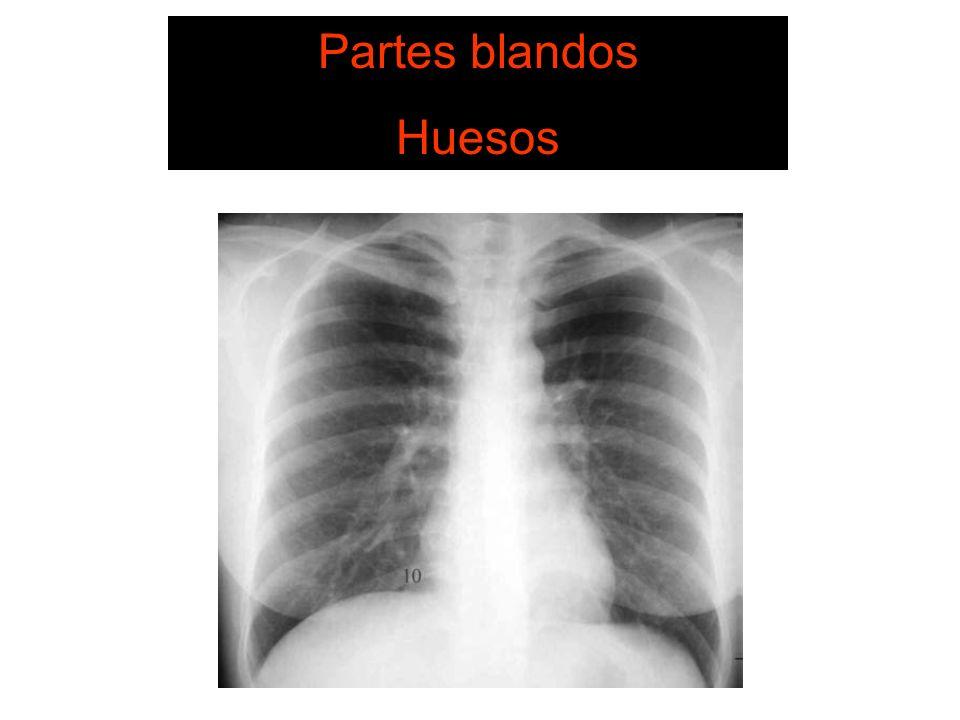 NEUMOTORAX Se aprecia linea pleural fina Hiperclaridad y ausencia de lineas vasculares Resto del pulmon colapsado Desviación del mediastino hacia el lado contralateral