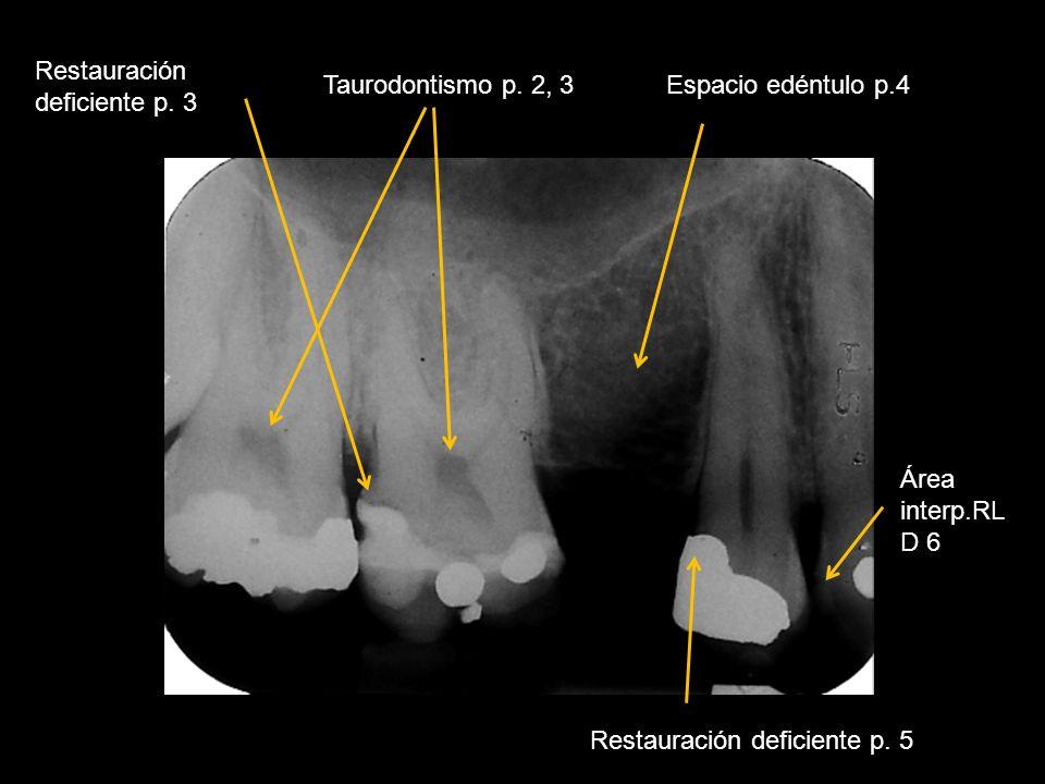 Restauración deficiente p. 3 Taurodontismo p. 2, 3Espacio edéntulo p.4 Restauración deficiente p. 5 Área interp.RL D 6