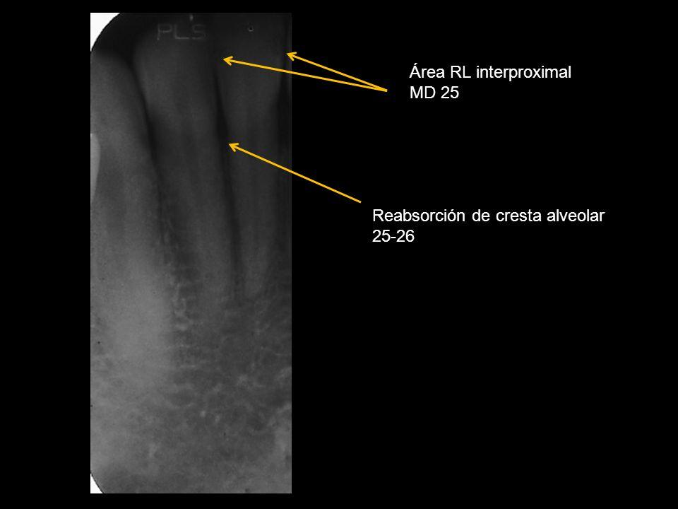 Área RL interproximal MD 25 Reabsorción de cresta alveolar 25-26