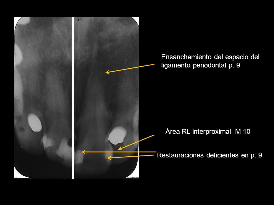 Restauraciones deficientes en p. 9 Ensanchamiento del espacio del ligamento periodontal p. 9 Área RL interproximal M 10