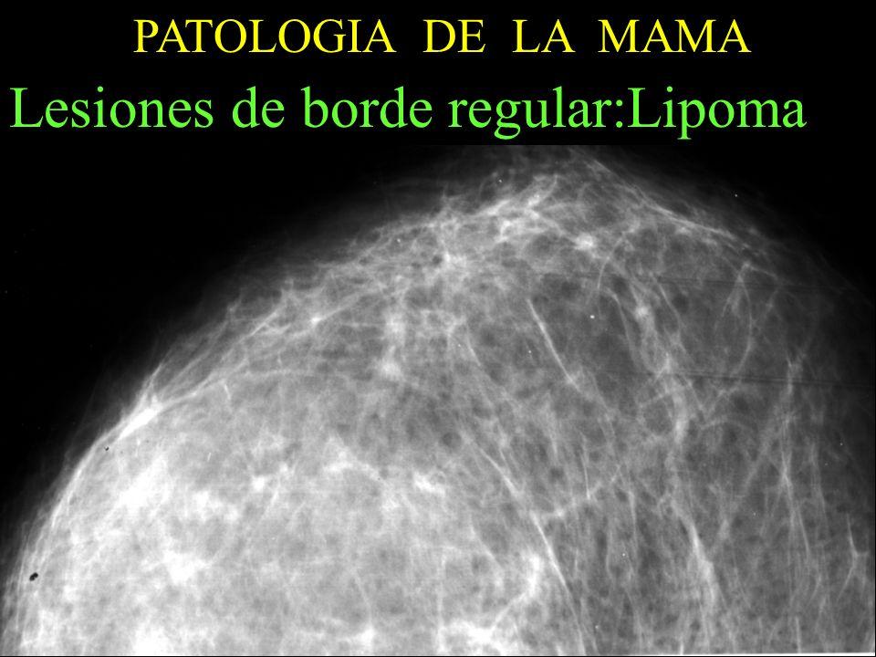 PATOLOGIA DE LA MAMA Lesiones de borde regular:Lipoma