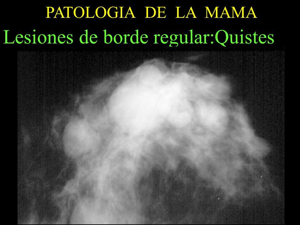 PATOLOGIA DE LA MAMA Lesiones de borde regular:Quistes