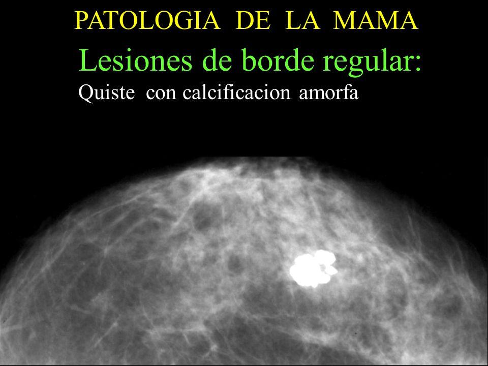 PATOLOGIA DE LA MAMA Lesiones de borde regular: Quiste con calcificacion amorfa