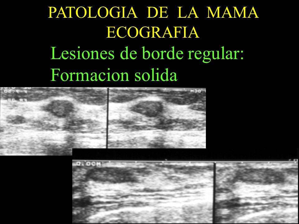 PATOLOGIA DE LA MAMA ECOGRAFIA Lesiones de borde regular: Formacion solida